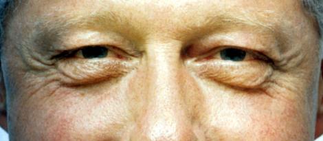 Bill Clinton's eyes