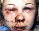 abuse victim 1
