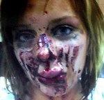 abuse victim 3