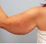 flabby arm